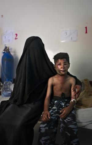 SAADA, YEMEN- 2017, OCT: Nachmi (9) est arrivé à l'hôpital public de Sanaa la veille, le 28 octobre 2017 après avoir été frappé par un bombardement aérien avec son frère Chaher (11) lui aussi gravement bléssé à la tête. Ils gardaient leurs bêtes lorsqu'une premiére les a frappés, puis une deuxieme bombe est tombée sur des amis venus leur porter secours. Nachmi (9) and his brother Chaher (11) were hit by an airstrike on the 28th of october 2017 as they were looking after their animals. They are both treated at the public hospital in Saada. (Picture by Veronique de Viguerie/Reportage by Getty Images)