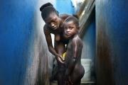 PORT-AU_PRINCE, HAITI-NOV, 2014: Marie-Denise est restee bloquee 5 jours dans sa maison avec son bebe, Anaika, a peine age de 20 jours lors du seisme du 12 janvier 2010. Toutes les deux miraculeusement vivantes s'en sont sorties mais Anaika a du etre amputee du bras droit. Aujourd'hui, dimanche Marie-Denise prepare Anaika pour aller a la messe. (Photo by veronique de Viguerie/Reportage by getty images).