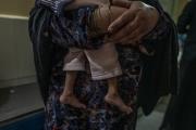 Le pôle de malnutrition de l'hôpital régional de Jalalabad ne désemplit pas.