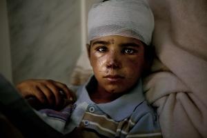 Chaher (11) est entre la vie et la mort, un fragment de bombe planté dans le cerveau. Il a été ciblé lors d'une frappe aérienne avec son frère agé de 9 ans alors qu'ils promenaient leurs moutons. L'hopital de Saada, fief Houthi, n'a pas les moyens ni de personnel competent pour retirer le morceau du crâne du garcon.11-years-old Chaher is between life and death with a shrapnel in his head. He was hit y an iarstrike as he was looking after his flock with his 9-years-old brother. The hospital in Saada, Houthi stronghold, has no equipment or quqlified personal to retrieve the shrapnel.
